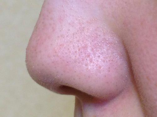 洗顔後の鼻の付け根