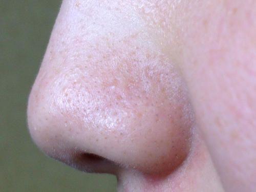 洗顔前の鼻の付け根