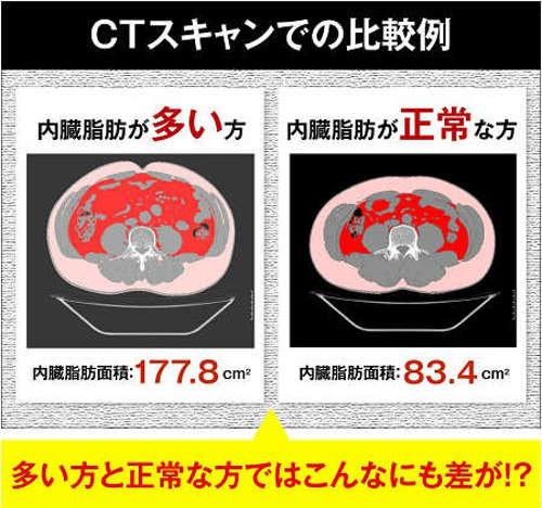ctスキャンの比較画像