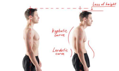 背筋が伸びてる人と伸びていない人の比較