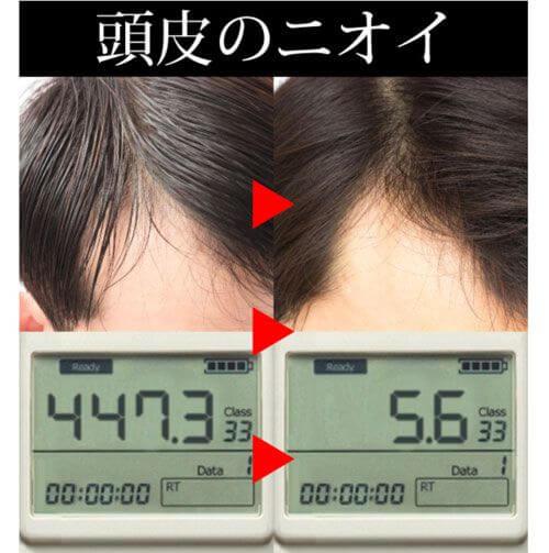 頭皮の計測結果