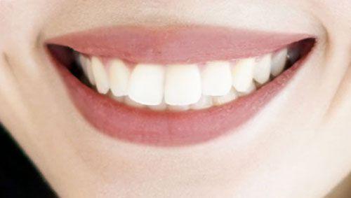 30代女性の良い口コミ/口元の画像