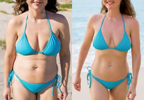 水着姿の女性のダイエットbefore after